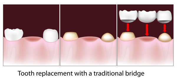 bridge replacing tooth