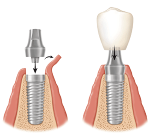 implant dental surgery